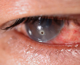 A foreign body causing a pink eye.